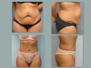 abdominoplasty-20541