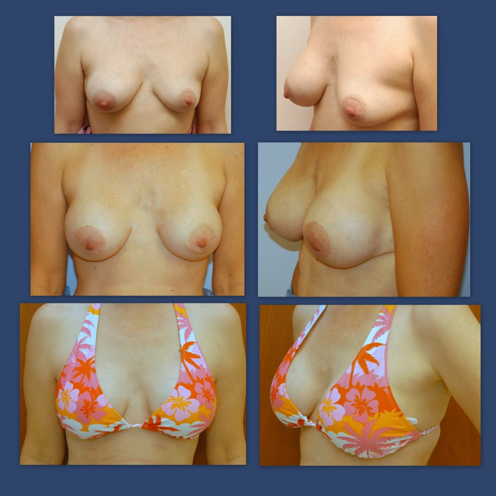 breast-augmentation-ag
