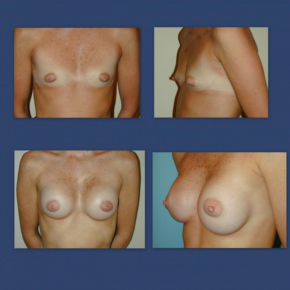 breast-augmentation-cd