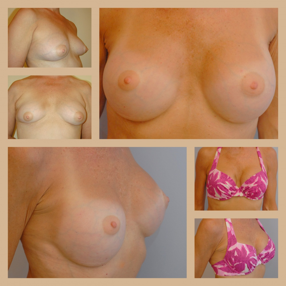 breast-augmentation-lb