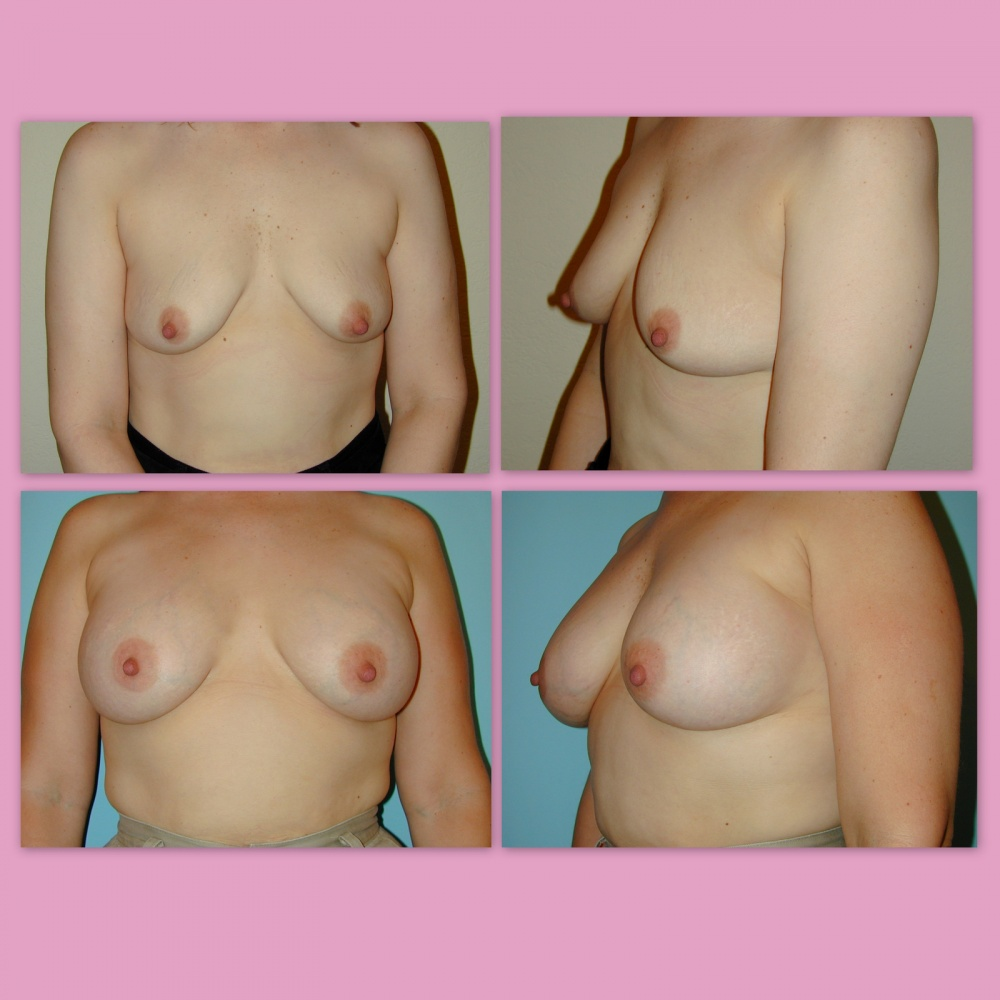 breast-augmentation-lg