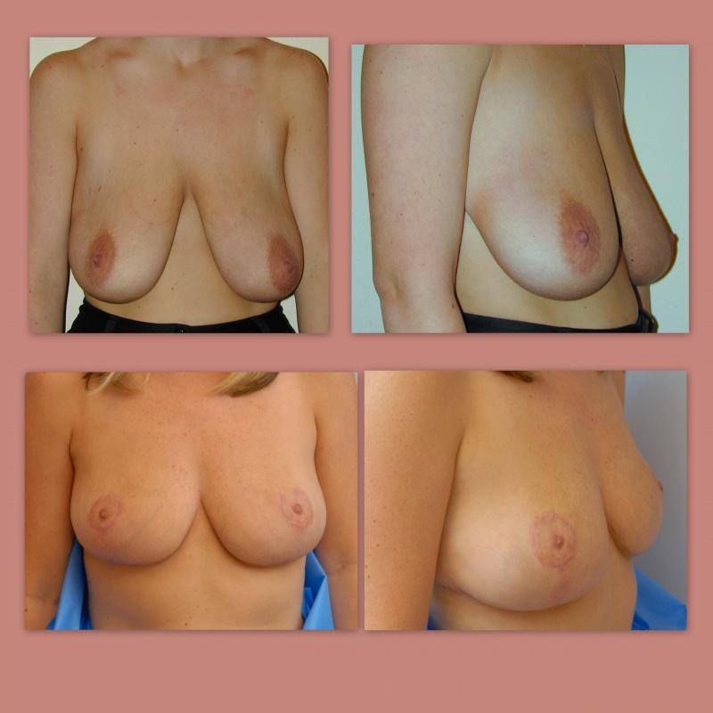 breast-left-mastopexy