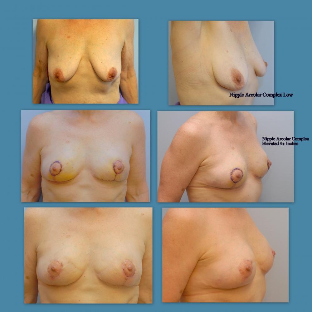 breast-lift-md