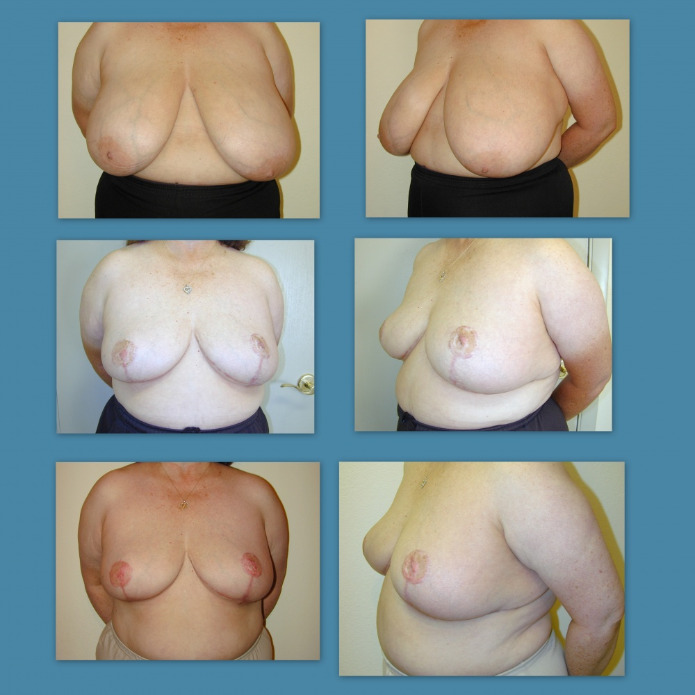 breast-reduction-as