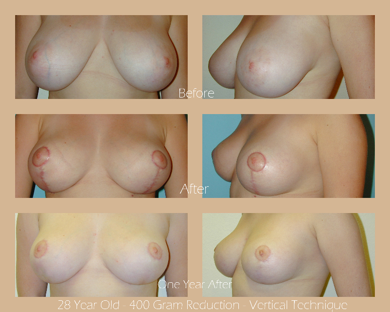 breast-reduction-vertical