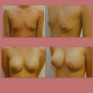 implantmastopexy and nipple reduction