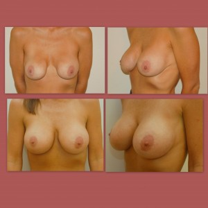 revisionbreastsurgery